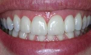 crown and veneers